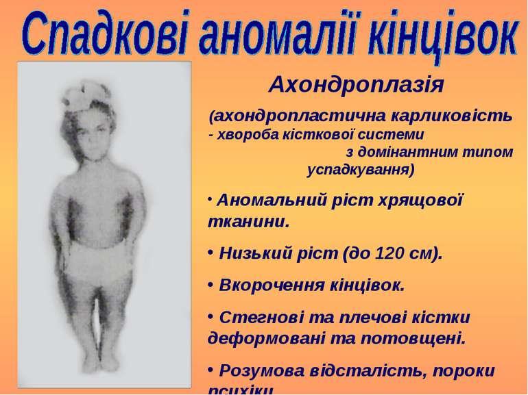 Ахондроплазія (ахондропластична карликовість - хвороба кісткової системи з до...