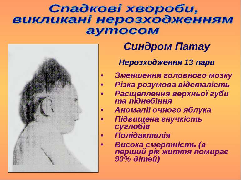 Зменшення головного мозку Різка розумова відсталість Расщеплення верхньої губ...