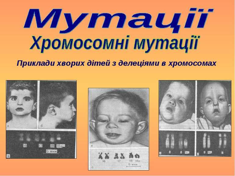 Приклади хворих дітей з делеціями в хромосомах