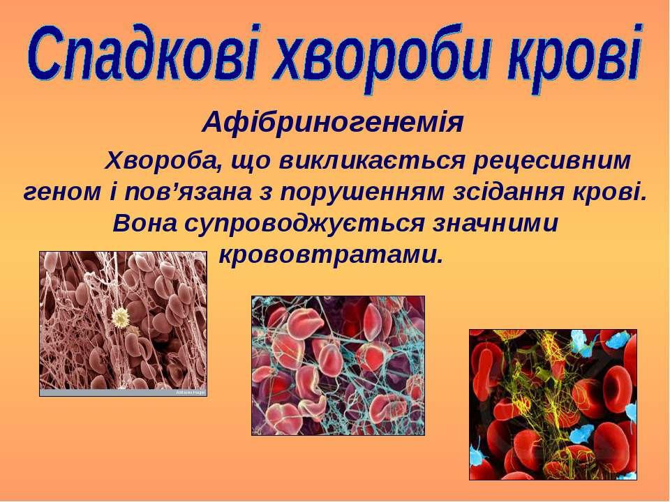 Хвороба, що викликається рецесивним геном і пов'язана з порушенням зсідання к...