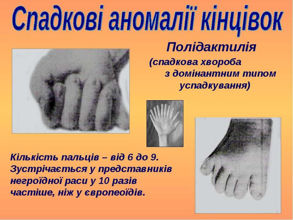Полідактилія (спадкова хвороба з домінантним типом успадкування) Кількість па...