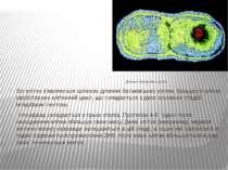 Ділення бактерійної клітки. Всі клітки з'являються шляхом ділення батьківськи...