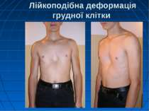 Лійкоподібна деформація грудної клітки