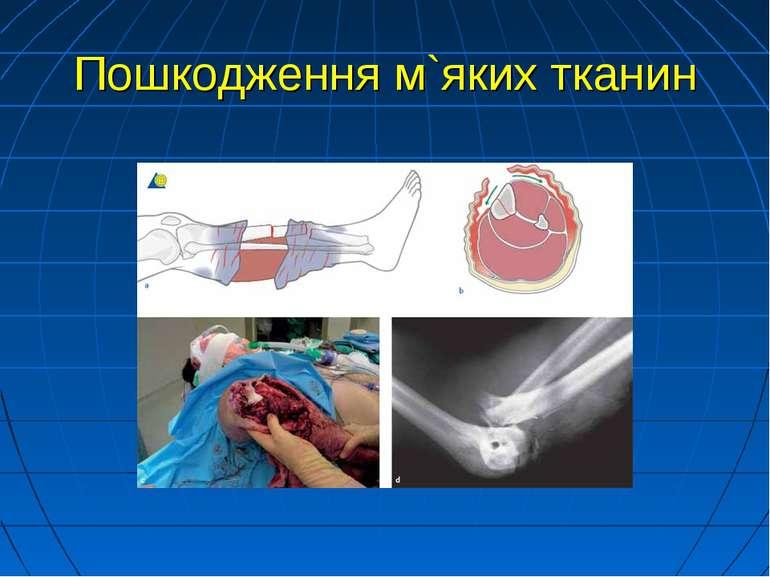 Пошкодження м`яких тканин