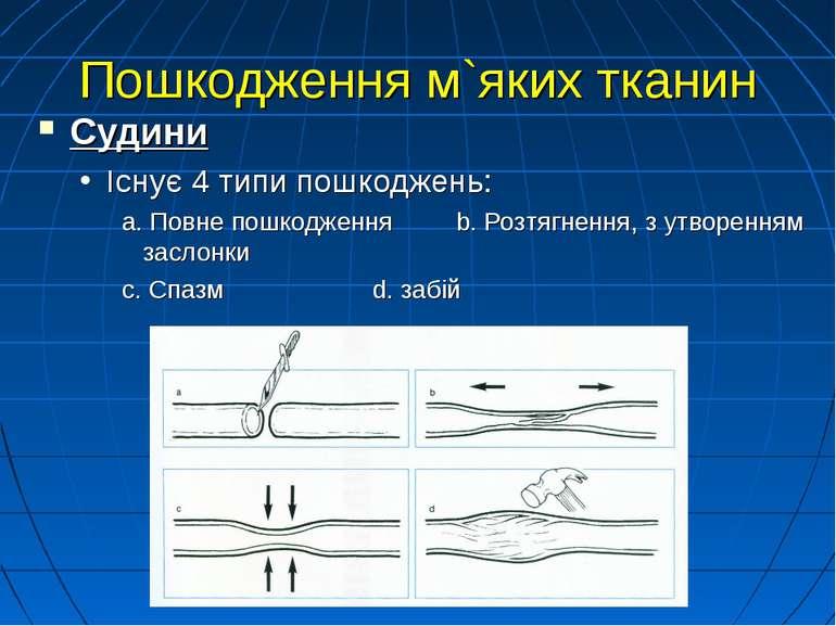 Пошкодження м`яких тканин Судини Існує 4 типи пошкоджень: a. Повне пошкодженн...