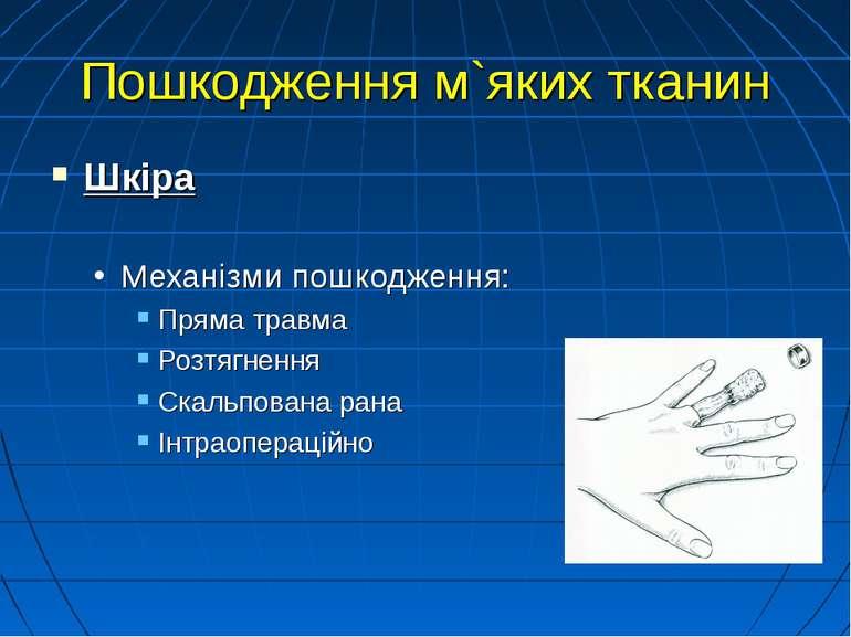 Пошкодження м`яких тканин Шкіра Механізми пошкодження: Пряма травма Розтягнен...