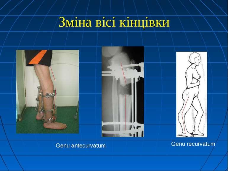 Зміна вісі кінцівки Genu recurvatum Genu antecurvatum