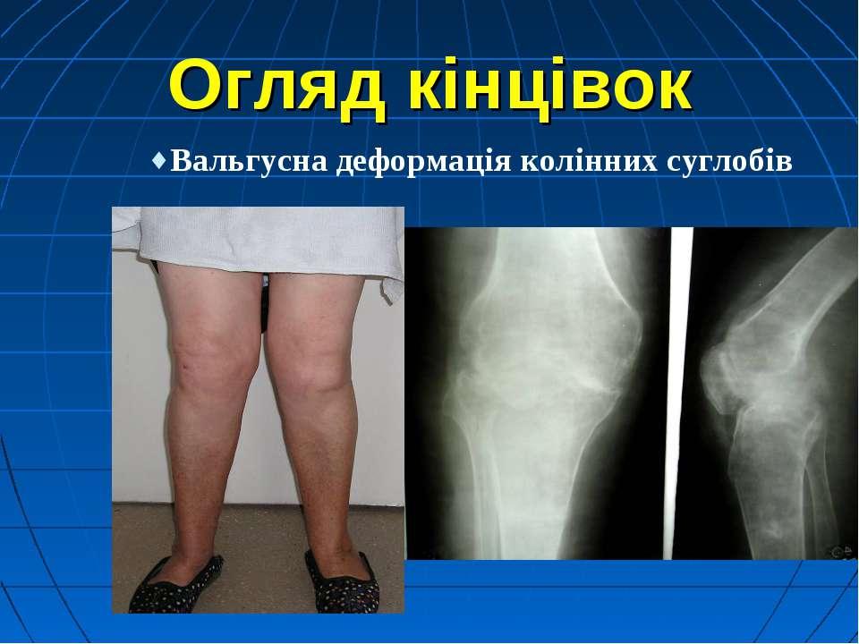 Огляд кінцівок Вальгусна деформація колінних суглобів
