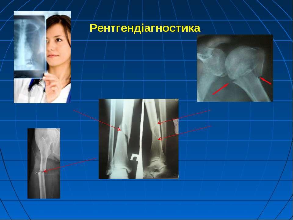 Рентгендіагностика