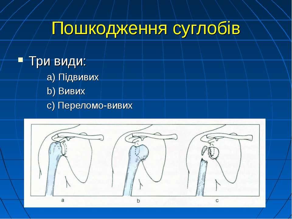 Пошкодження суглобів Три види: а) Підвивих b) Вивих c) Переломо-вивих