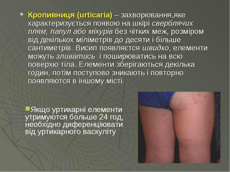 Кропивниця (urticaria) – захворювання,яке характеризується появою на шкірі св...