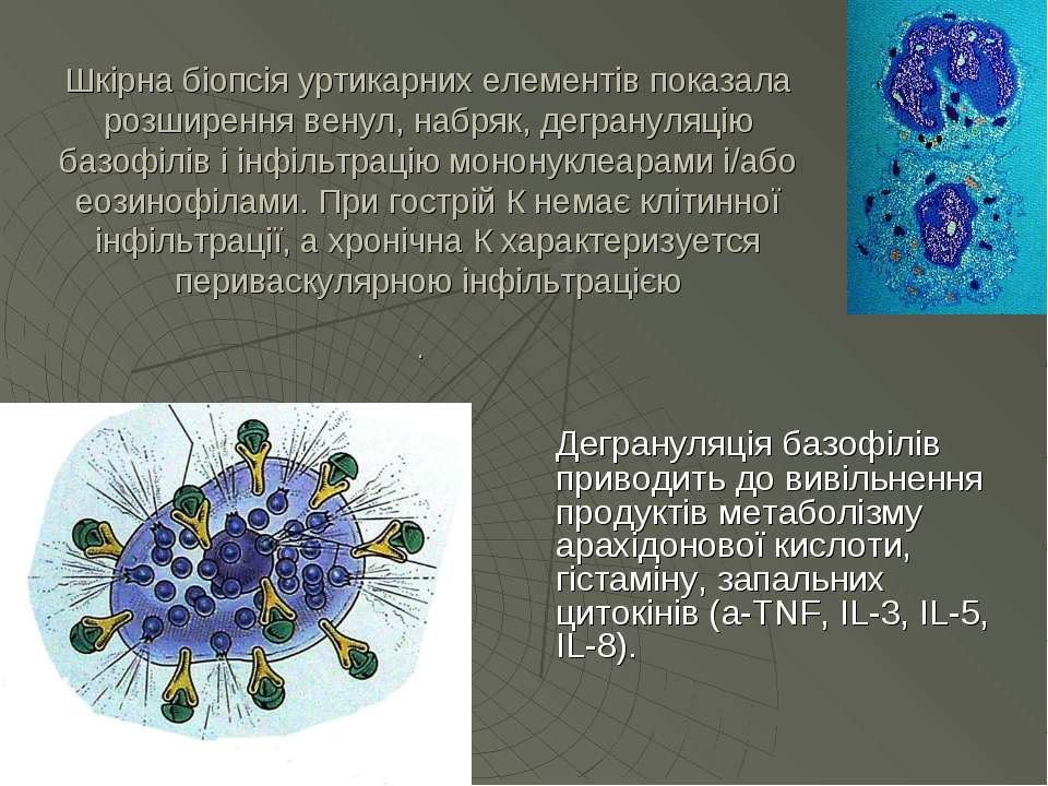 Шкірна біопсія уртикарних елементів показала розширення венул, набряк, дегран...