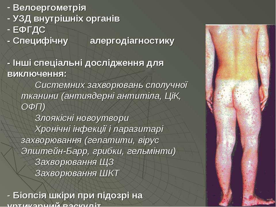 Велоергометрія УЗД внутрішніх органів ЕФГДС - Специфічну алергодіагностику - ...