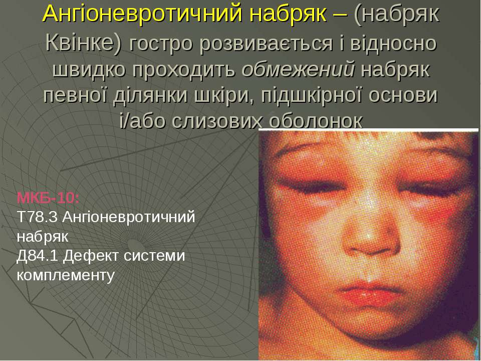 Ангіоневротичний набряк – (набряк Квінке) гостро розвивається і відносно швид...