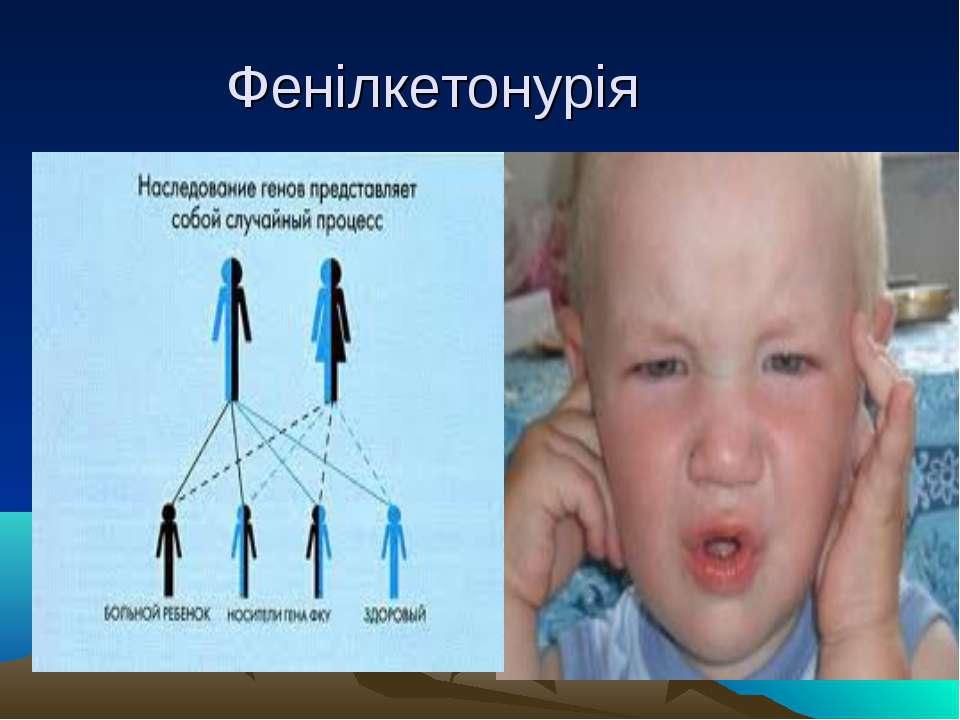 Фенілкетонурія