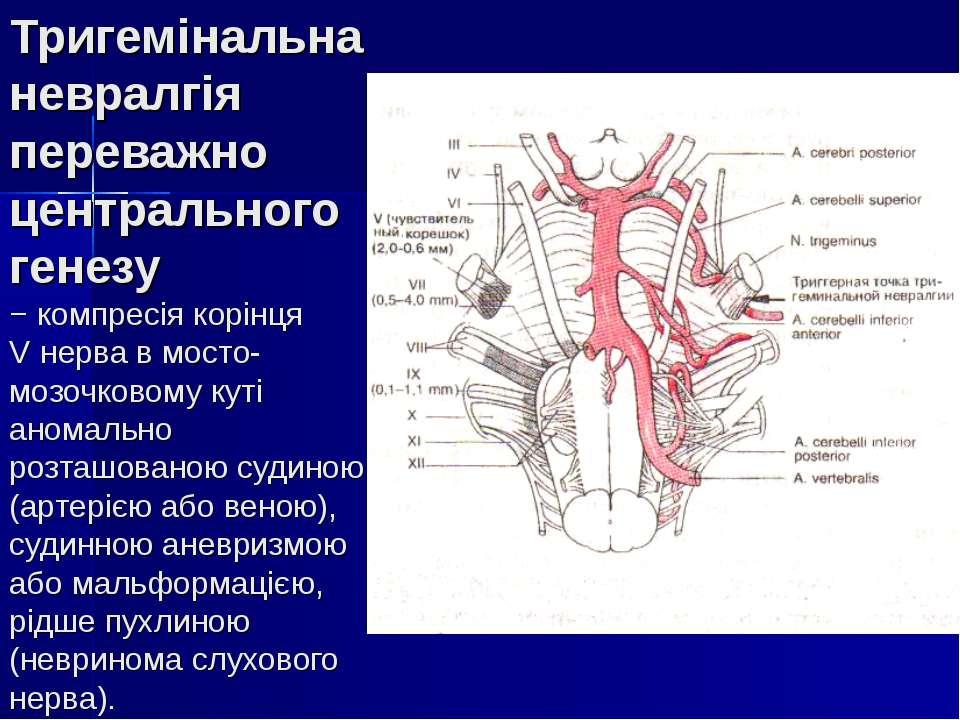 Тригемінальна невралгія переважно центрального генезу − компресія корінця V н...