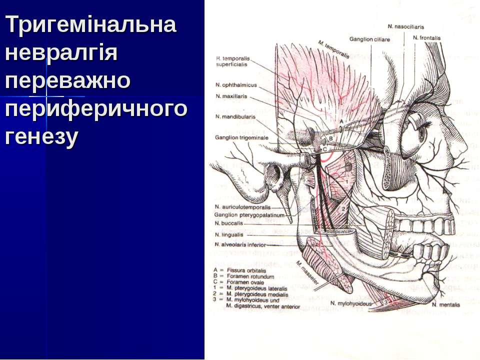 Тригемінальна невралгія переважно периферичного генезу
