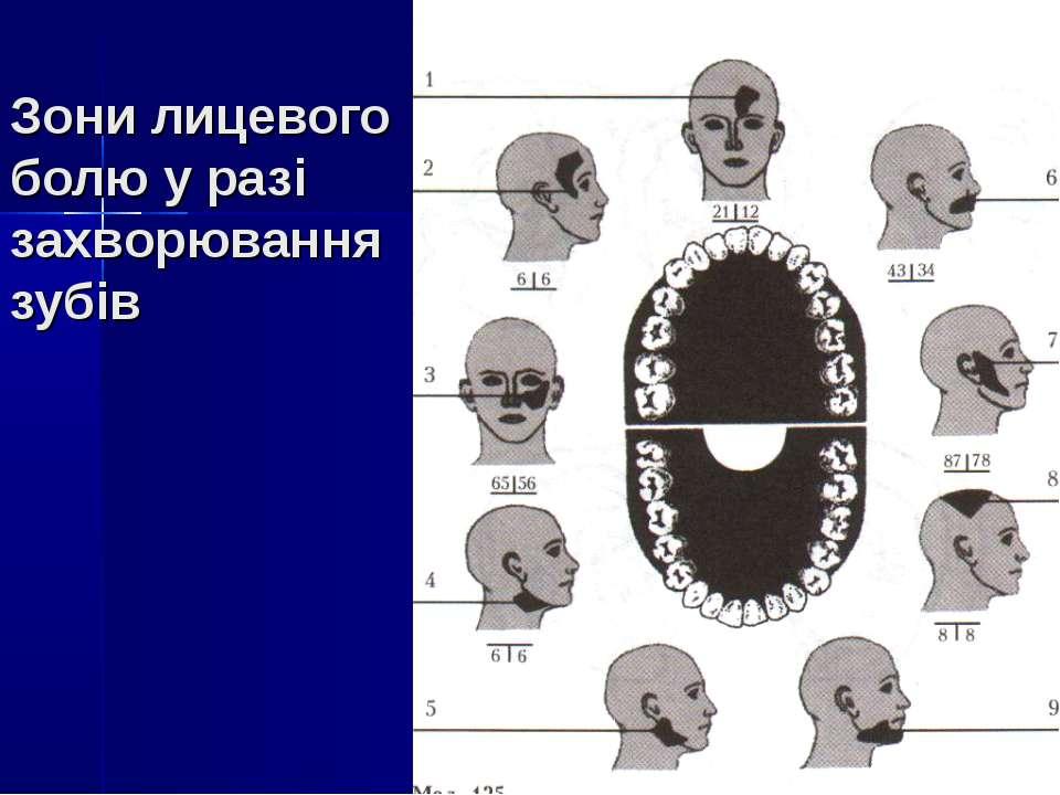 Зони лицевого болю у разі захворювання зубів