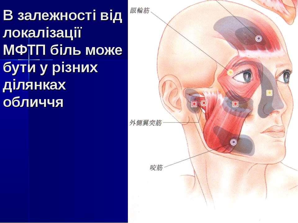 В залежності від локалізації МФТП біль може бути у різних ділянках обличчя