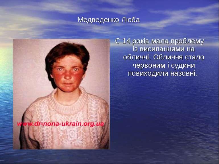 Медведенко Люба С 14 років мала проблему із висипаннями на обличчі. Обличчя с...