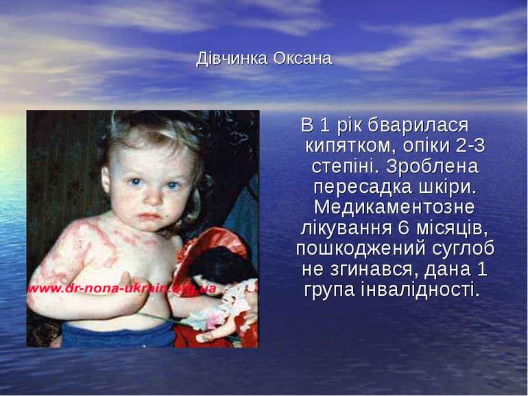 Дівчинка Оксана В 1 рік бварилася кипятком, опіки 2-3 степіні. Зроблена перес...