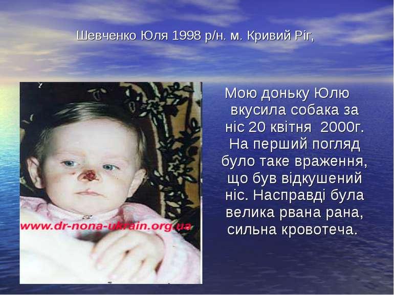 Шевченко Юля 1998 р/н. м. Кривий Ріг, Мою доньку Юлю вкусила собака за ніс 20...