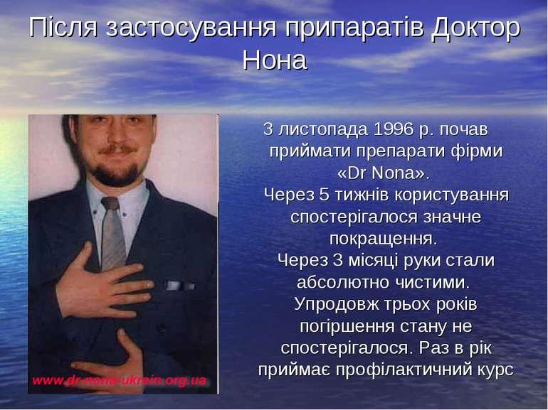 Після застосування припаратів Доктор Нона З листопада 1996 р. почав приймати ...