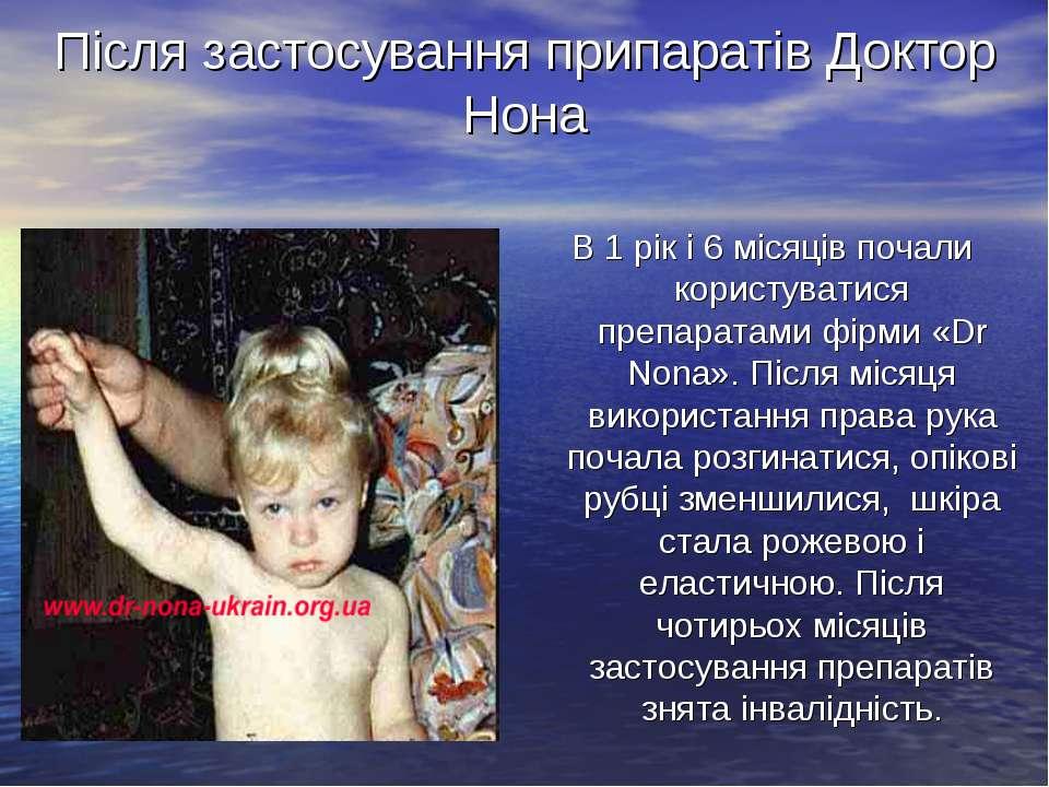 Після застосування припаратів Доктор Нона В 1 рік і 6 місяців почали користув...