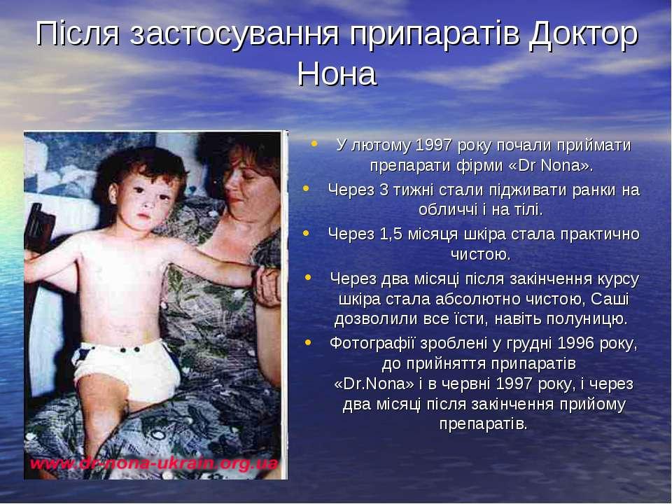 Після застосування припаратів Доктор Нона У лютому 1997 року почали приймати ...