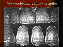 Ідентифікація передніх зубів