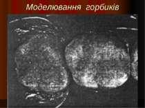 Моделювання горбиків