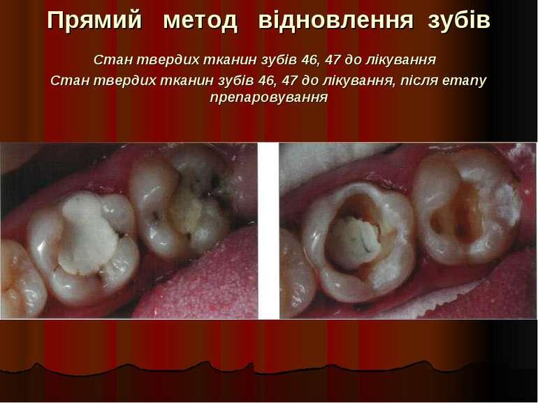 Прямий метод відновлення зубів Стан твердих тканин зубів 46, 47 до лікування ...