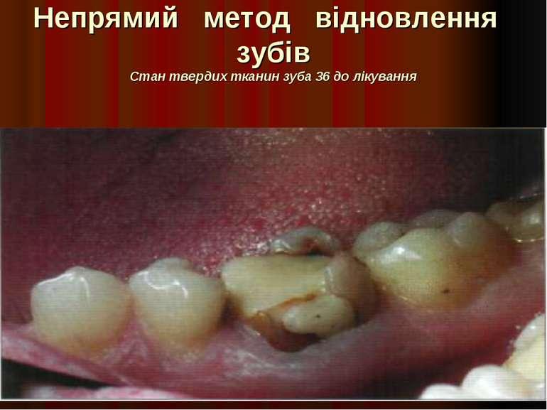 Непрямий метод відновлення зубів Стан твердих тканин зуба 36 до лікування