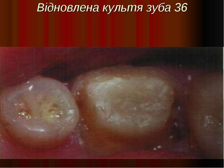 Відновлена культя зуба 36