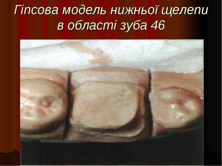 Гіпсова модель нижньої щелепи в області зуба 46