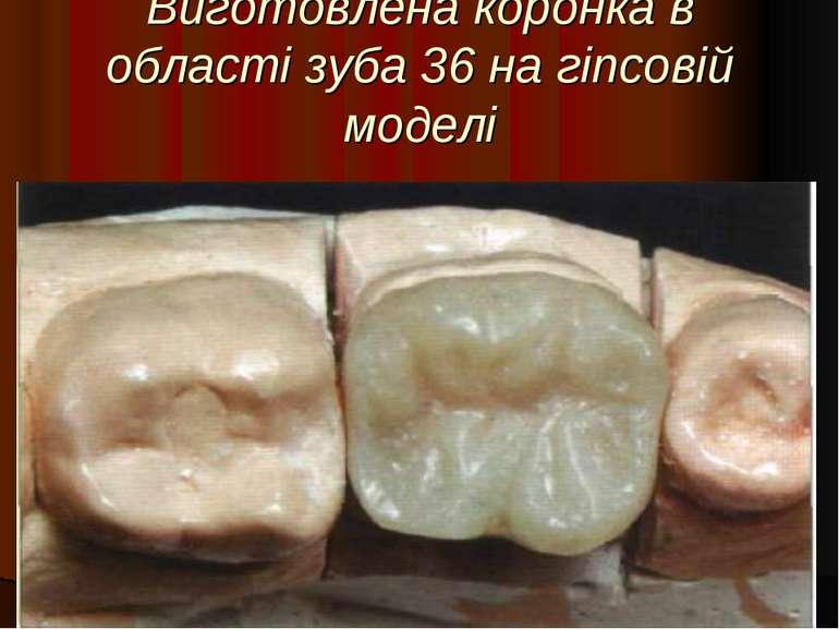 Виготовлена коронка в області зуба 36 на гіпсовій моделі