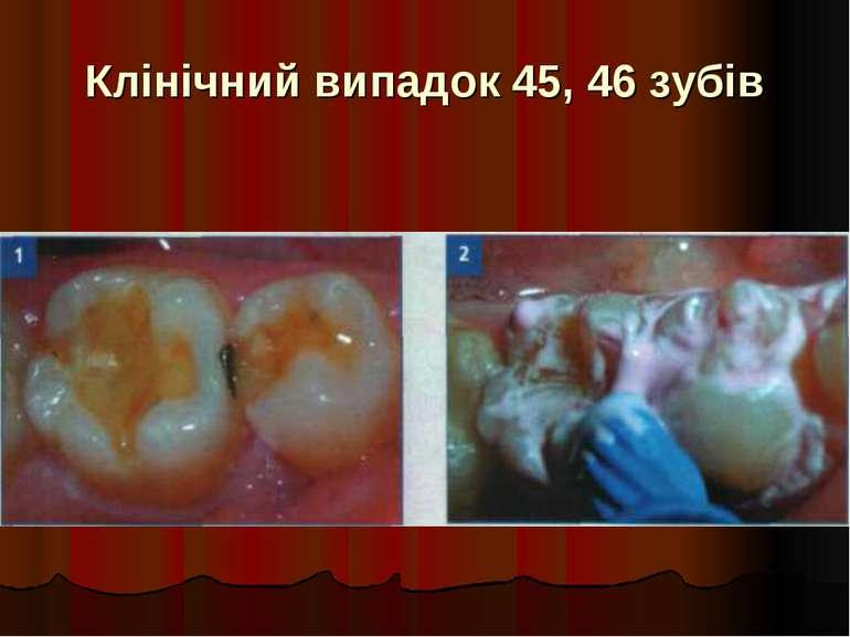 Клінічний випадок 45, 46 зубів
