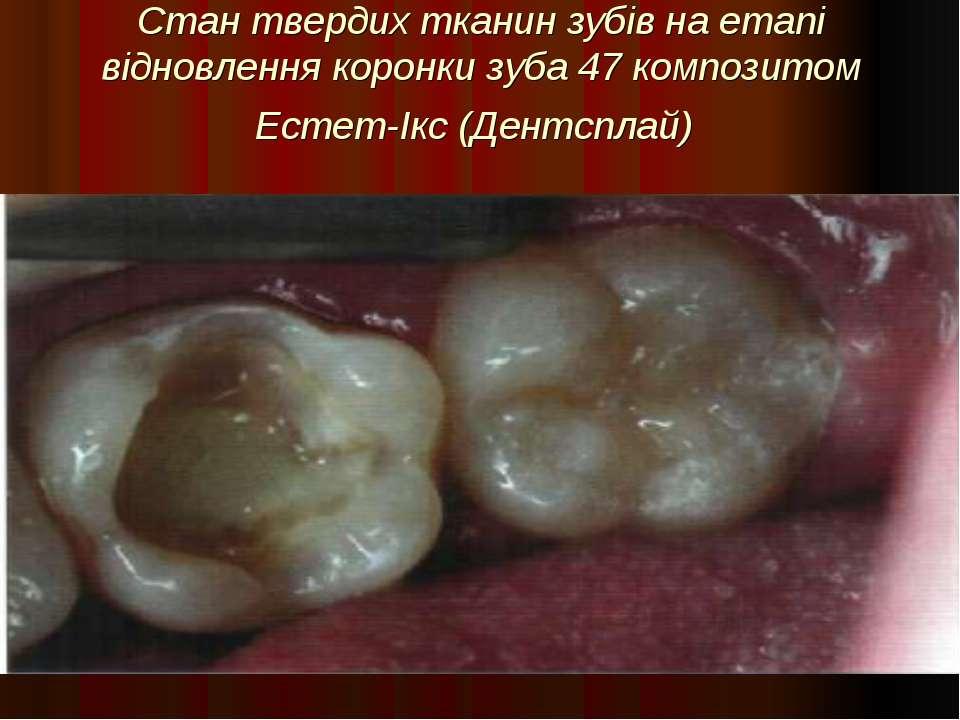 Стан твердих тканин зубів на етапі відновлення коронки зуба 47 композитом Ест...