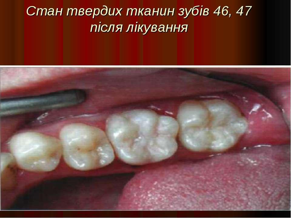 Стан твердих тканин зубів 46, 47 після лікування