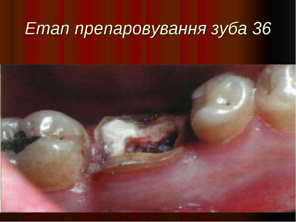 Етап препаровування зуба 36