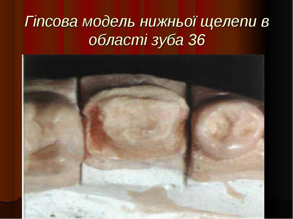Гіпсова модель нижньої щелепи в області зуба 36