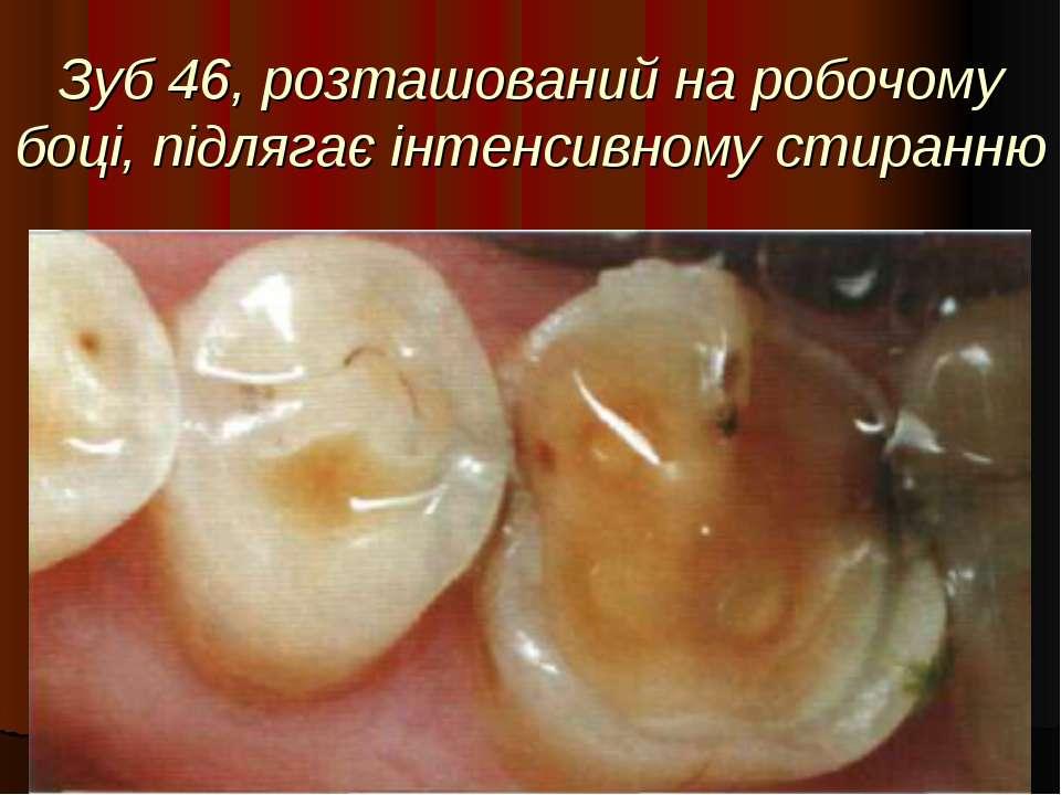 Зуб 46, розташований на робочому боці, підлягає інтенсивному стиранню