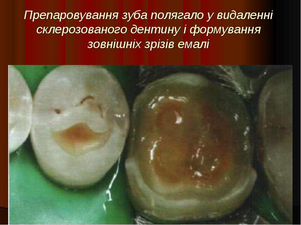 Препаровування зуба полягало у видаленні склерозованого дентину і формування ...