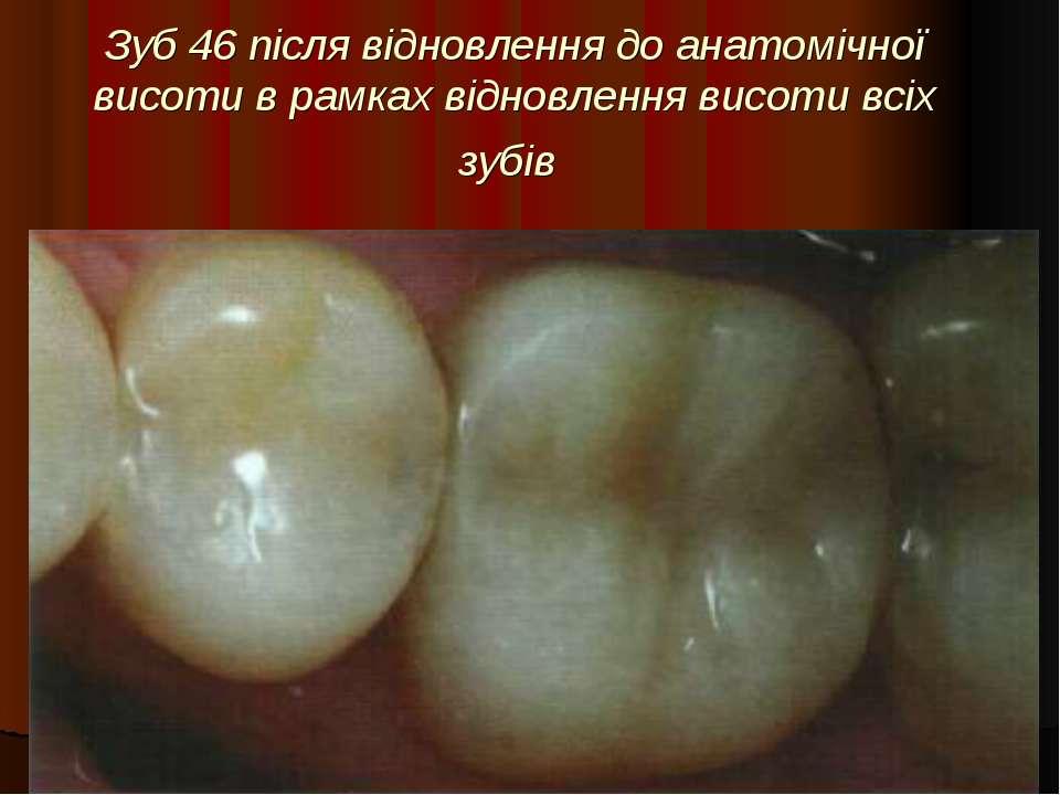 Зуб 46 після відновлення до анатомічної висоти в рамках відновлення висоти вс...