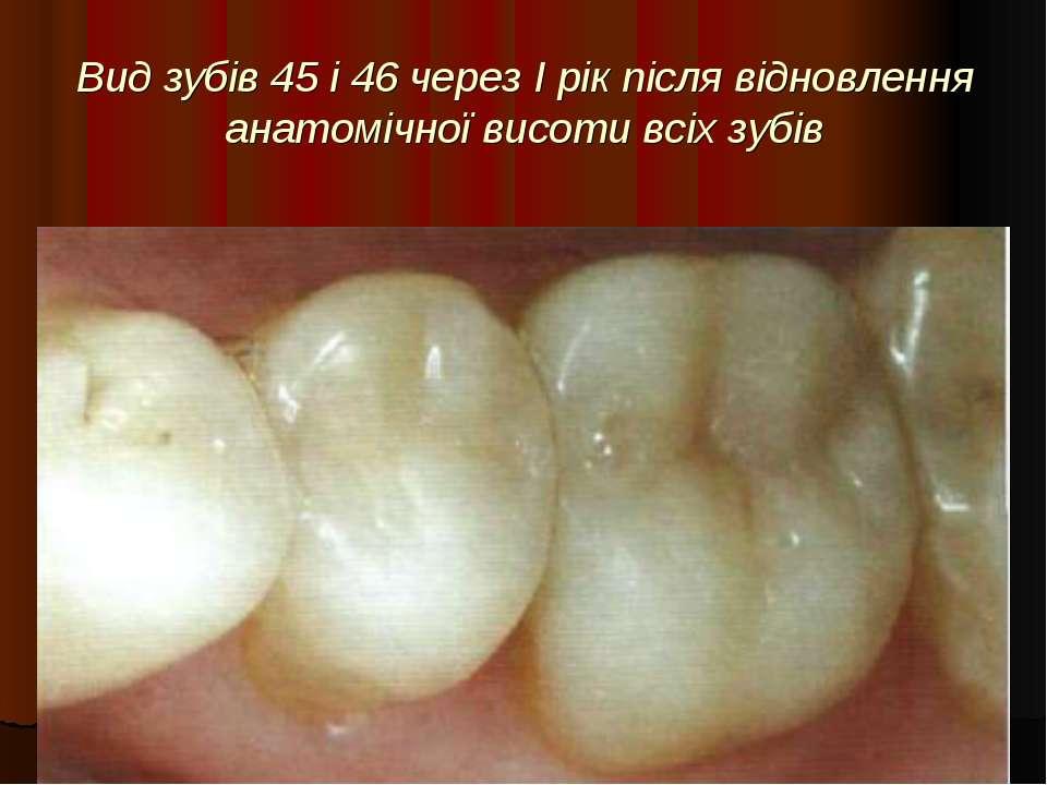 Вид зубів 45 і 46 через I рік після відновлення анатомічної висоти всіх зубів