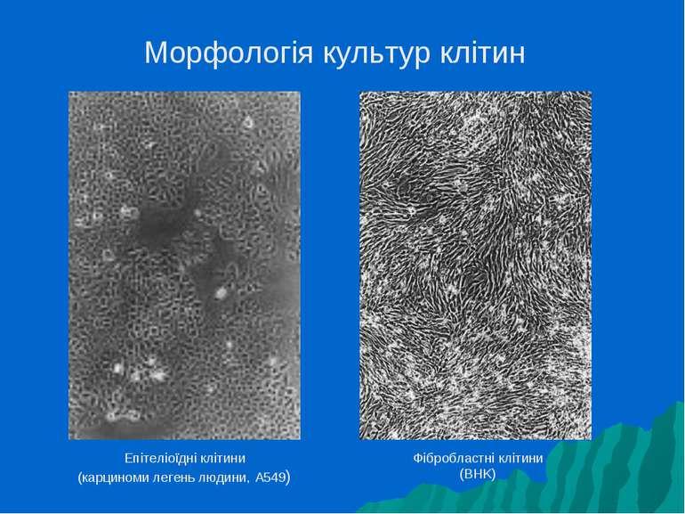 Морфологія культур клітин Епітеліоїдні клітини (карциноми легень людини, A549...