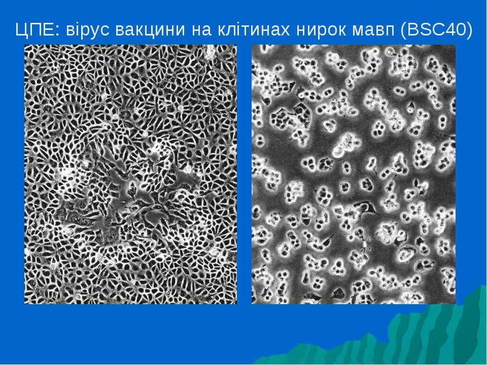 ЦПE: вірус вакцини на клітинах нирок мавп (BSC40)