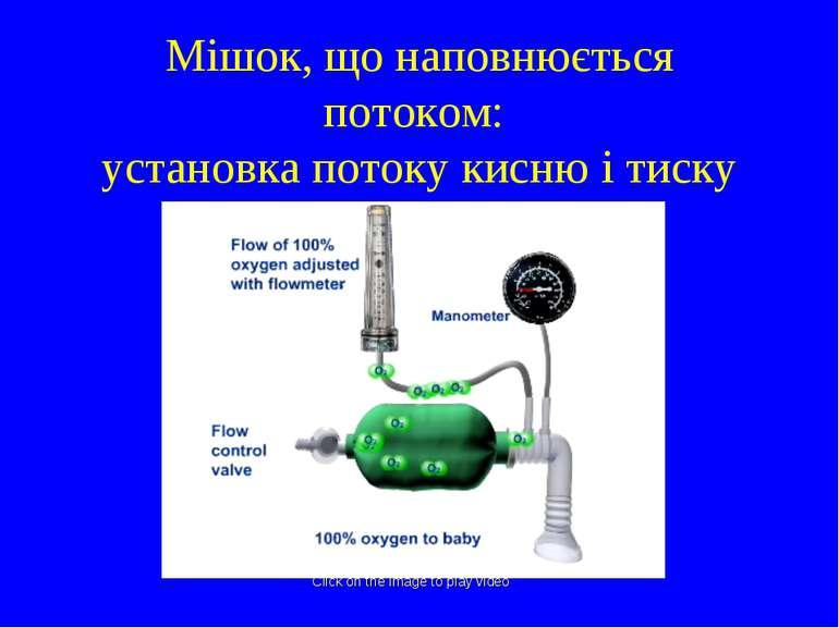 Мішок, що наповнюється потоком: установка потоку кисню і тиску Click on the i...