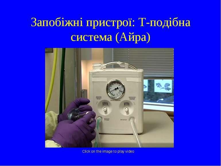 Запобіжні пристрої: T-подібна система (Айра) Click on the image to play video