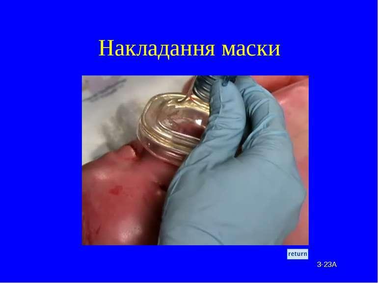 Накладання маски 3-23A